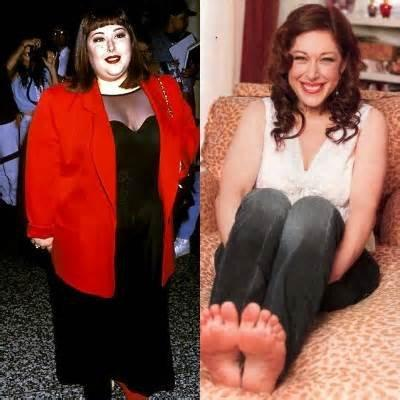 CELEBRITY Carnie Wilson Before and After Gastric Bypass
