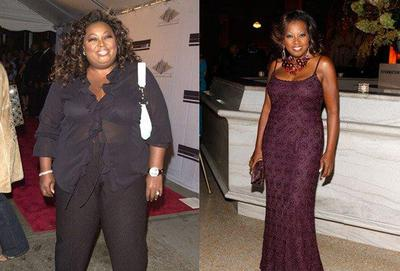 Before and After Gastric Bypass